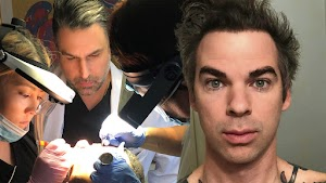 Vegas Hair Transplants