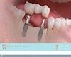 Image 7 of Dental Gabriela Castro, Pozos, Santa Ana