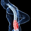 Back-Neck Pain Treatment Winter Park Neuromuscular Pain Relief Clinic