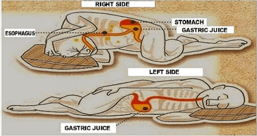 This Is Why You Should Sleep on Your Left Side (Backed by Science)