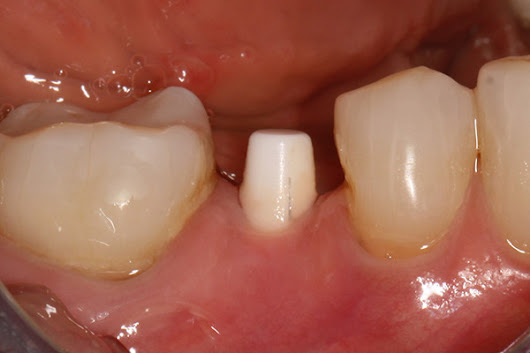 When It Comes to Dental Implants, Metal-Free Is Your Best Bet. Here's Why - Dr. Judson Wall