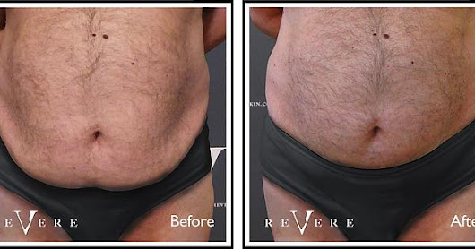 Bulk fat reduction without surgery