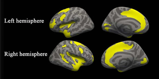 MRI Uncovers Brain Abnormalities in People With Anxiety and Depression