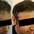 Hair Transplant Surgery Before and After Results in Delhi