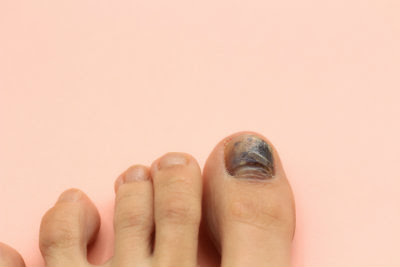 Toenails Are Still Black: How Bruised Nails Heal