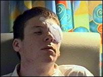 Robert Johnson después de la operación