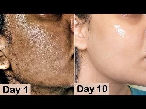 Repair Damaged Skin - Close Large OPEN PORES & Remove Dark spots