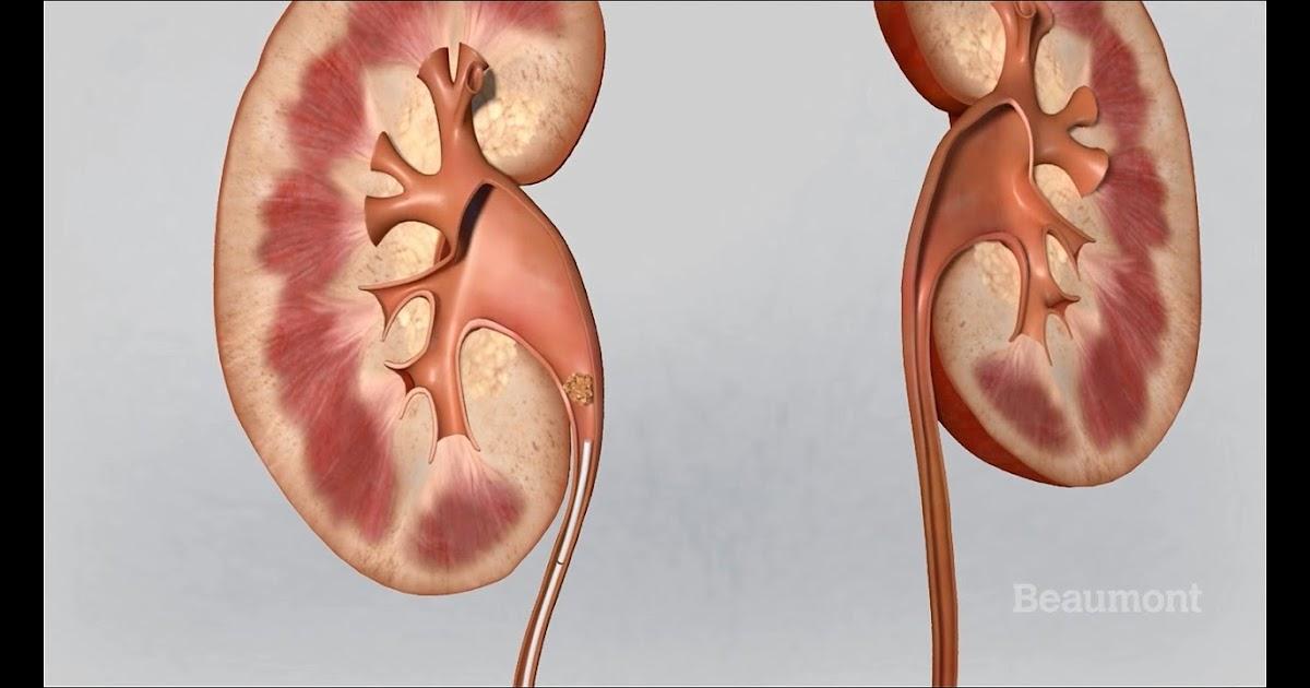 Kidney Kaha Hoti Hai Body Me - KIDAUSTA