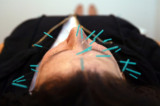 What's The Science Behind Acupuncture?