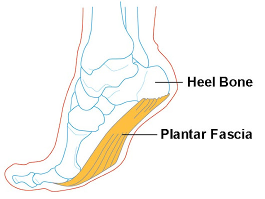 The Complete Guide to Treating Plantar Fasciitis | Feet Genius