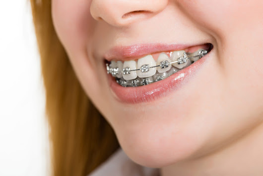 Misconceptions About Getting Braces - Affordable Braces