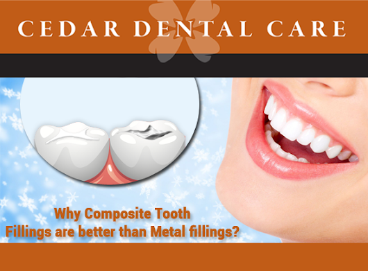 Why Composite Tooth Fillings are better than Metal fillings?