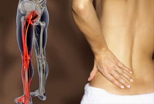 How to Treat Sciatica and Lower Back Pain - Step To Health