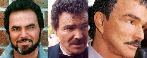 Disastres de cirurgia plástica de celebridades - Burt Reynolds