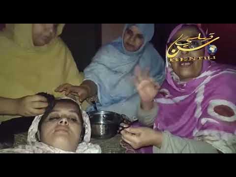 بالفيديو:حالة الزهرة لغريد بعدما تعرضت له على يد قوات الاحتلال المغربي.