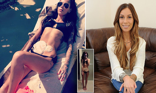 Crohn's sufferer becomes internet star after showing her colostomy bag
