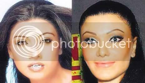 Koena Mitra Plastic Surgery Disaster