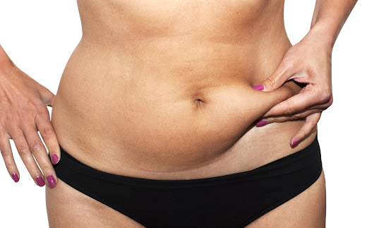 Tummy Tuck or Liposuction? | American Society of Plastic Surgeons