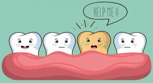 Teeth infections Problems- Nayar dental clinic in noida