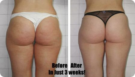 Does Cellulite Factor Really Work?