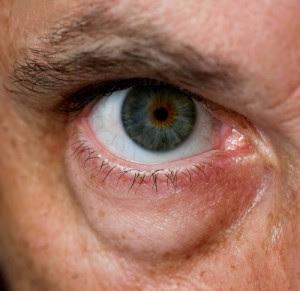 Cirugía De Bolsas De Ojos En Hombres Cirugia Estetica Masculina