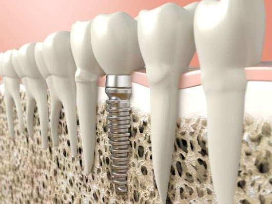 5 Reasons to Choose Dental Implants Instead of a Dental Bridge - Roderick A. Garcia, DMD PC Albuquerque New Mexico