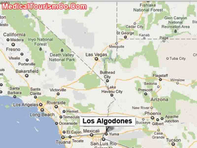 All-on-4 Dental Implants| Permanent Denture | Los Algodones Mexico | Med Tourism Co, LLC