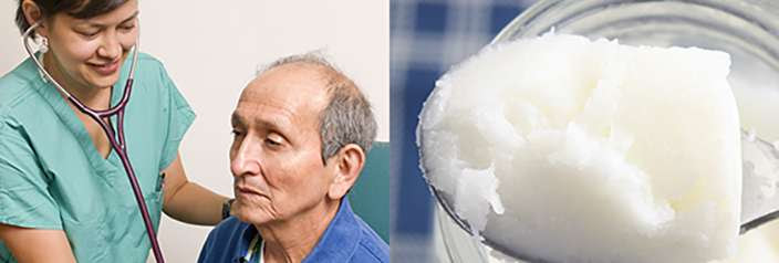 coconut oil alzheimers