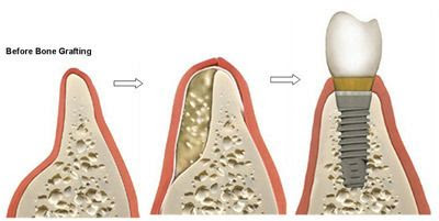 Bone Grafting - New York, NY - Long Island, NY - Brooklyn, NYC