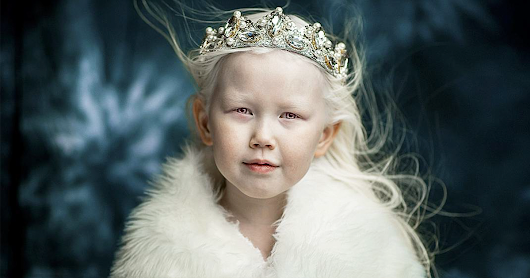 "8-Year-Old Albino ""Snow White"" From Siberia Takes Fashion Industry By Storm, Won't Start Modeling Just Yet"