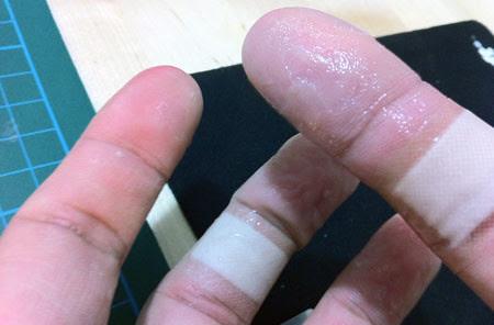 Hurt Fingers