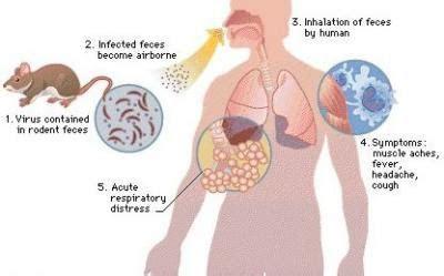Hantavirus Pulmonary Syndrome (HPS) Causes, Symptoms, Diagnosis and Treatment   Natural Health News
