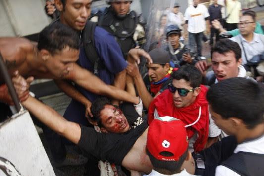 Αποτέλεσμα εικόνας για νεκροι Βενεζουέλας