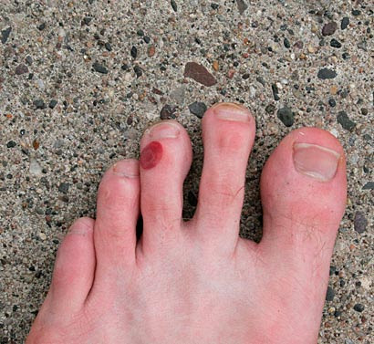 how to make a blood blister go away