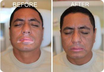 Does Natural Vitiligo Treatment System Work