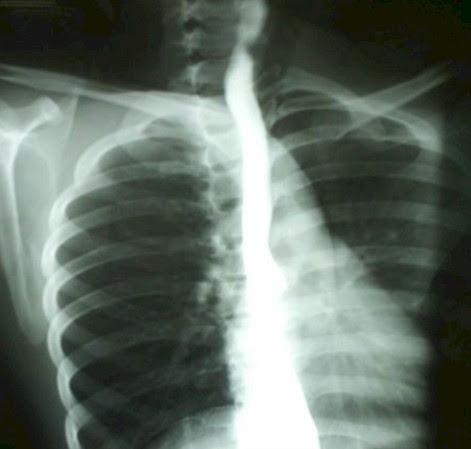 sindrome_Plummer_Vinson/esofagograma_esofago_cervical