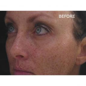 50% OFF IPL Face and Chest Treatments for Skin ...