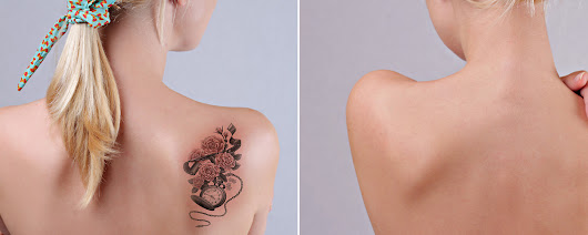 Laser Skin Center & Medical Spa | Tattoo Removal
