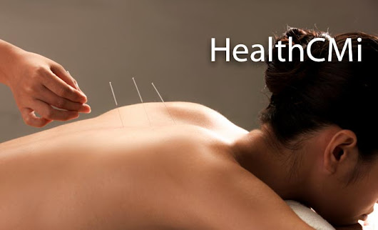 Acupuncture Prevents and Clears Migraines