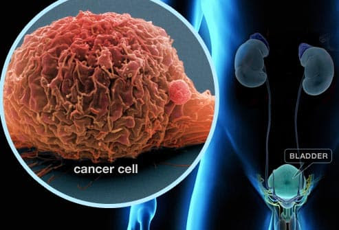 Bladder Cancer Pictures: Warning Signs, Treatments, Survival Rates
