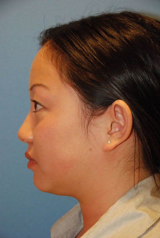 Ear Plastic Surgery | Otoplasty Before & After Photos Seattle Bellevue