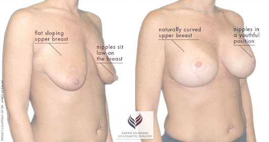 Breast Lift Guide