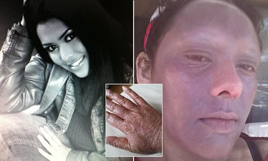 Agonising skin condition leaves woman trapped inside for 20 years