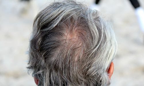 Hair-Loss, Gray Hair, And Skin-Damage From Western Diet Cured By Experimental Drug. Possibly Atherosclerosis And Aging, Too!