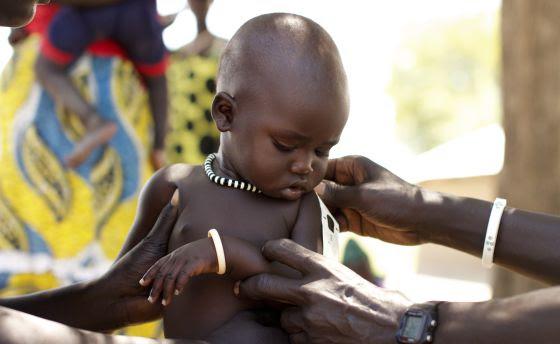 Un niño es atendido por un médico para conocer su estado de desnutrición.
