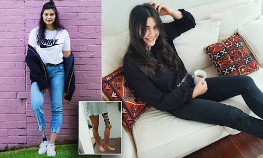 Jessica Quinn lost leg reveals her body image struggle | Daily Mail Online