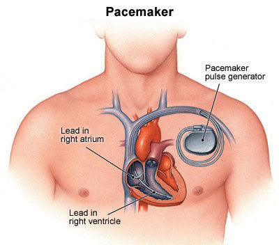 CARDIAC PACING , Pace maker and Nursing Care Plan