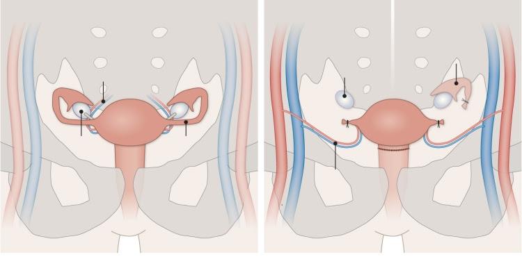 transplante-de-utero