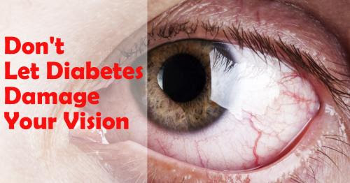 Don't Let Diabetes Damage Your Vision by sharp sight