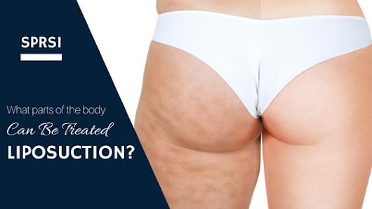 What Parts of the Body Can Be Treated With Liposuction?